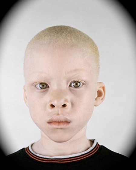 Albinos murdered in Africa for the occult!   22MOON.COM