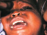 circumcision200-1-1