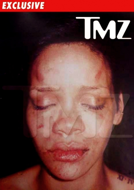 0219_rihanna_photo_beating2