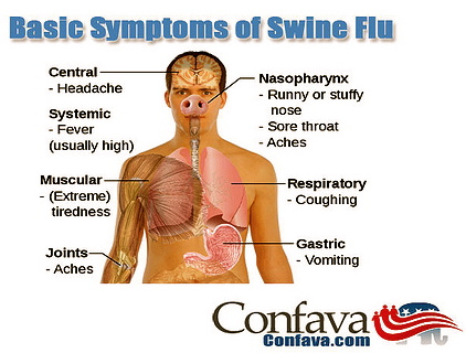 Swine Flu Causes Treatment Prevention amp Vaccine