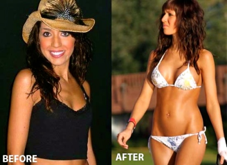 Farrah-Abraham-Breast-Implants