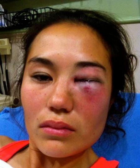 stl-knockout-victim